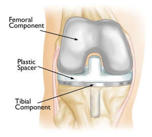 image of a knee replaceme